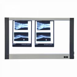 NEGATOSCOPE LED EXTRA-PLAT 3 PLAGES.